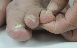 How to treat toe nail fungus